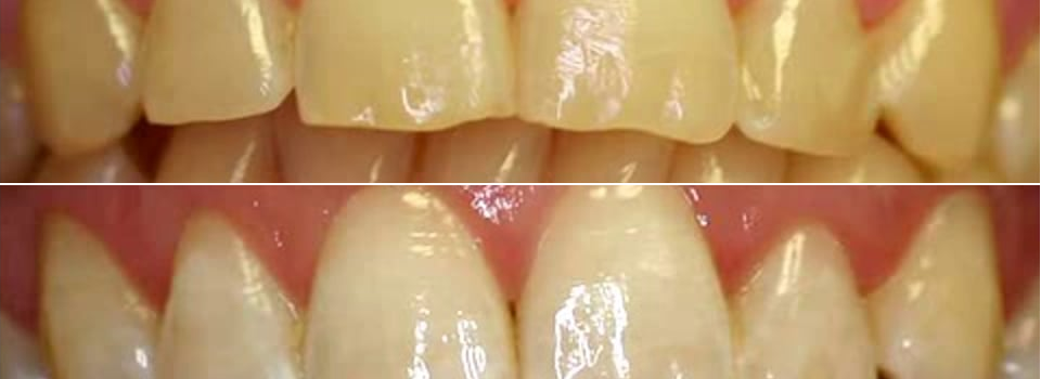 estetica dentale sbiancamento denti