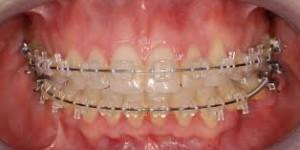 Cure per i denti storti