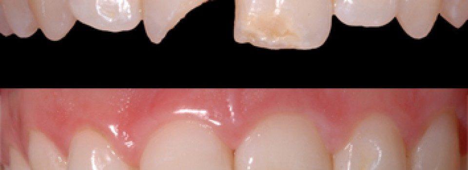 cura problemi ai denti