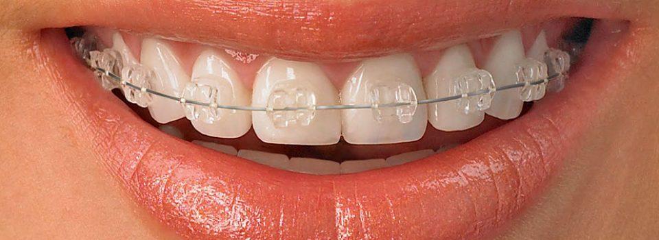 curare i denti storti aversa